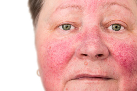 5 rosacea treatments that can help end redness